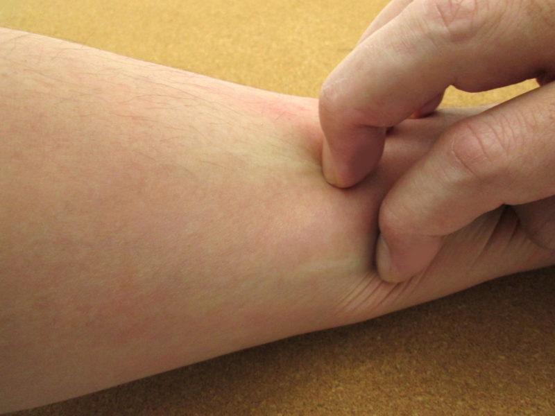下肢静脈瘤の疾患場所が痒くなる