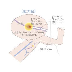 下肢静脈瘤レーザー治療