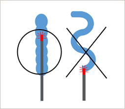 下肢静脈瘤レーザー治療ができない血管のイメージ画像