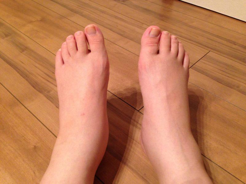 下肢静脈瘤に似た症状の病気①『足のムクミ』